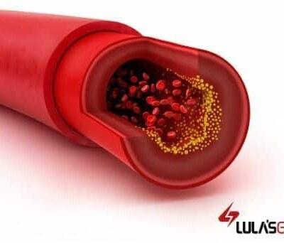 El colesterol en sangre. ¿ Bueno o malo?